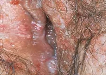 Blue waffle sexually transmitted disease pictures
