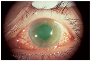 Glaucoma effected eye
