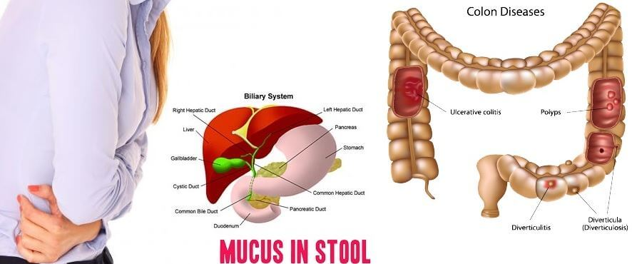 Mucus in stool causes symptoms images