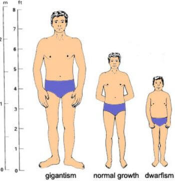 Pituitary Dwarfism gigantism normal growth