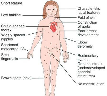 Mosaic Turner Syndrome Symptoms Signs Diagnosis