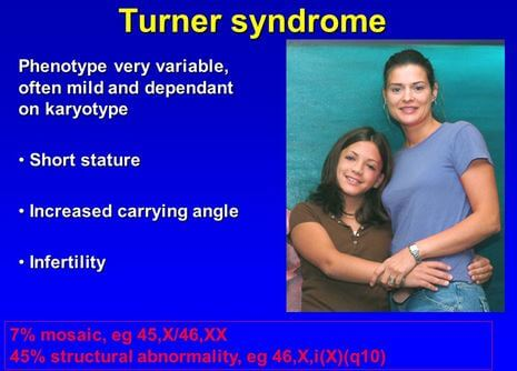 Turner Mosaic Syndrome Symptoms Signs