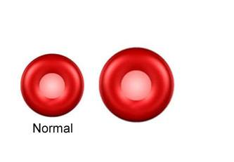 red blood cells normal and macrocytic
