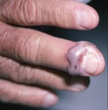 serious hangnail infection