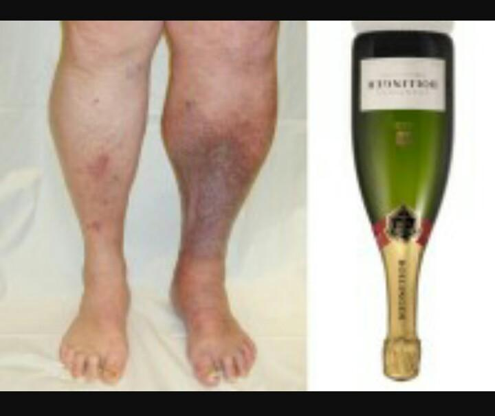 Lipodermatosclerosis champagne bottle