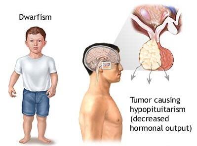 dwarfism pituitary tumors