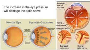 Glaucoma effects