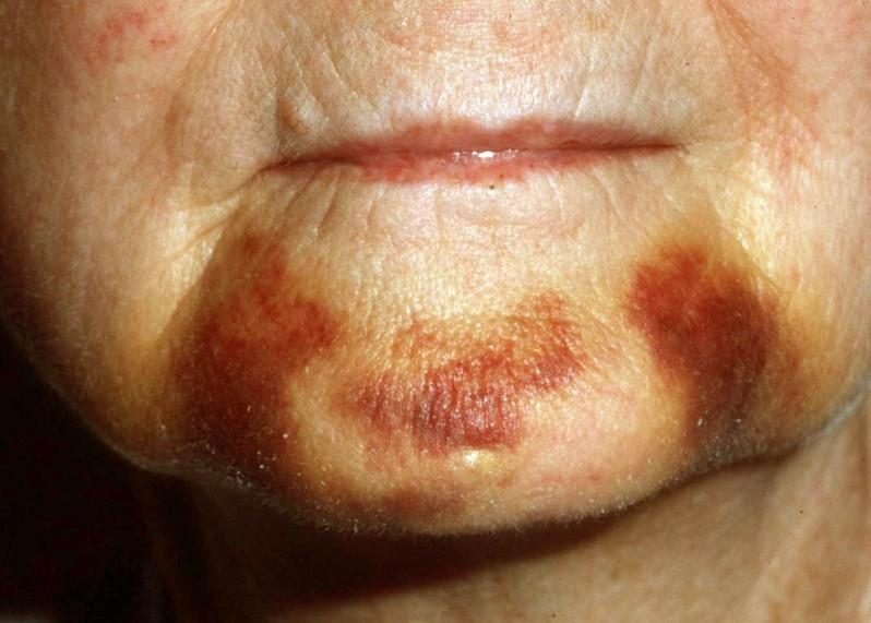 manifestation of ecchymosis on skin