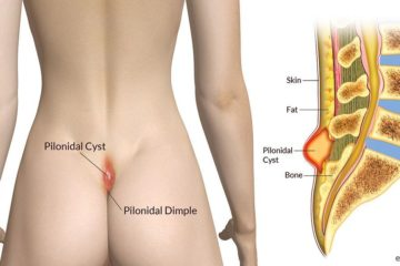 Pilonidal Cyst or Pilonidal Abscess Cyst on Tailbone