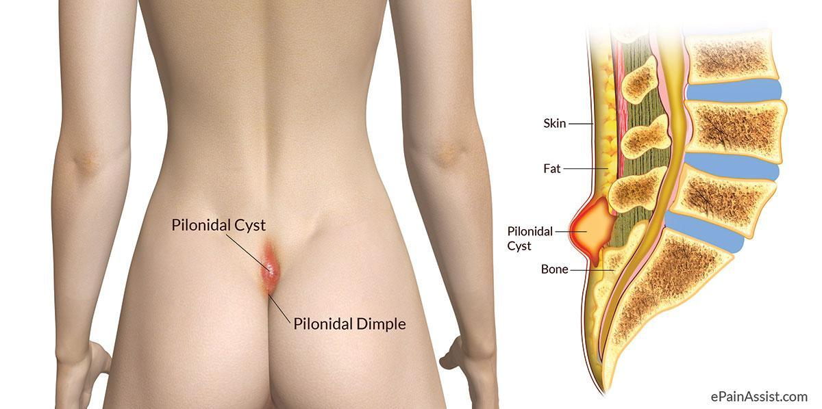 Cyst on Tailbone or Pilonidal Abscess