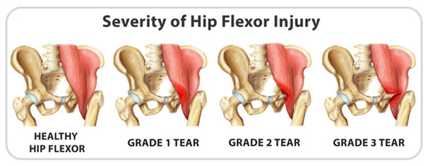 hip flexor strain injury