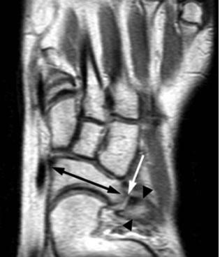 Tarsal Coalition MRI