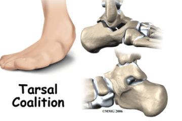 Tarsal Coalition (foot)