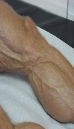 Lipoatrophy picture 4
