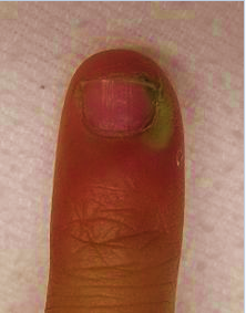 Paronychia on nail