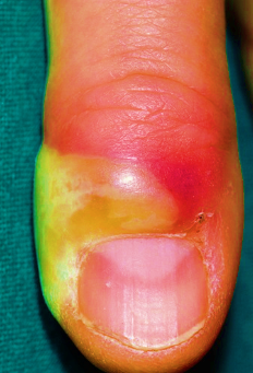 Paronychia on finger