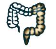 Left-sided colitis