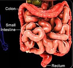 Pancolitis (intestine)