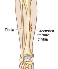 Greenstick Fracture of leg