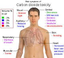 Hypercapnia Carbondioxide Toxicity