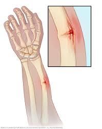 Greenstick Fracture of hand