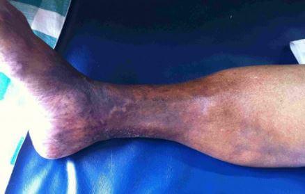 Chronic Lipodermatosclerosis