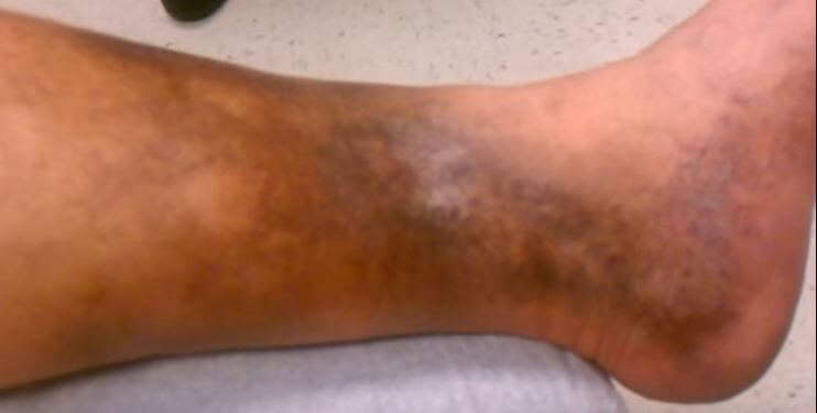 Lipodermatosclerosis - Images, Pictures, Treatment ...