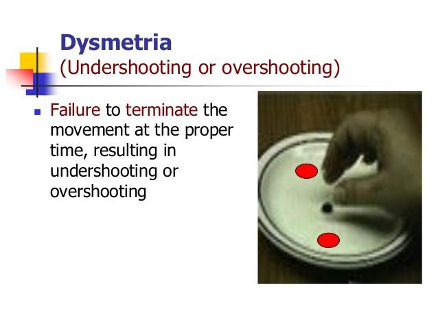 Dysmetria 1