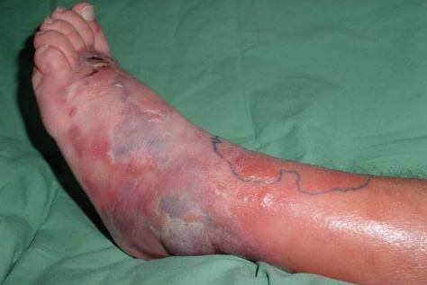 Cellulitis pictures 7