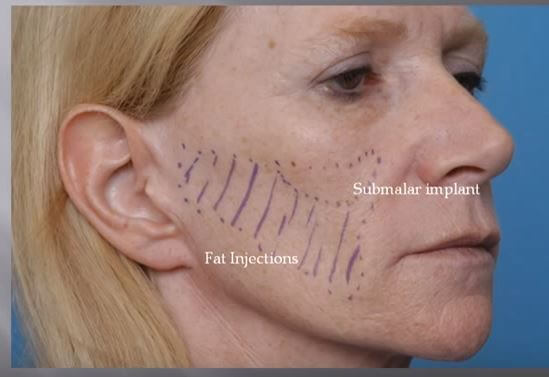 Submalar Implant fat injcetions