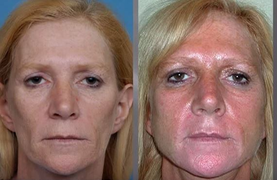 Lipoatrophy before and after treatment